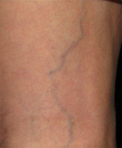 veins on legs very visible